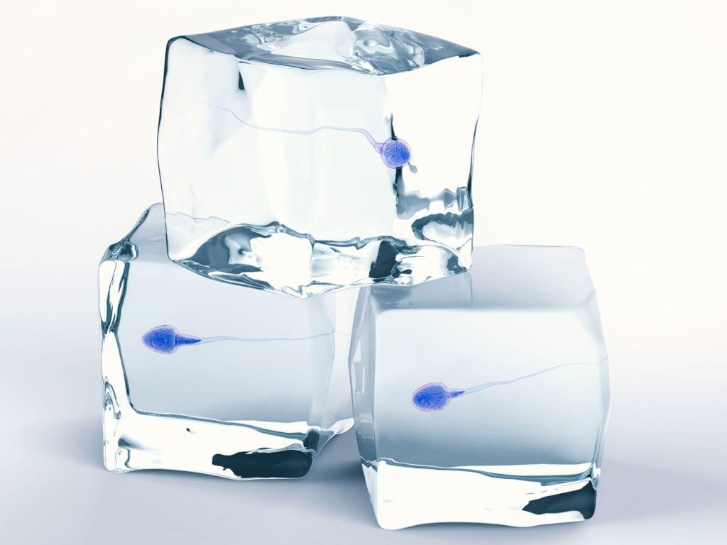 Congelació de semen preservació fertilitat masculina