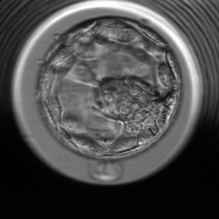 embrió embyoscope